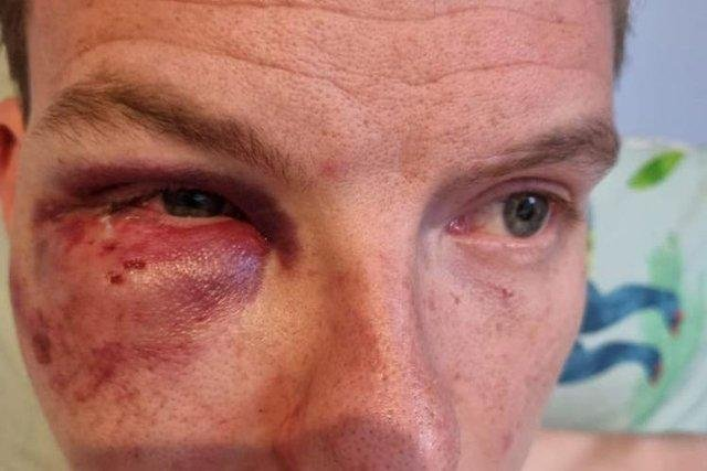 The 30-year-old was allegedly tripped up by a group of four men who then punched and kicked him.